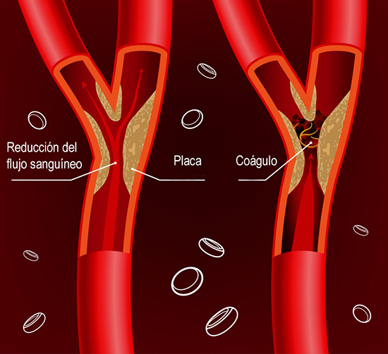 Beautiful vector illustration of blood flow infographic. Abstract medicine concept. Useful for poster, indographics, placard, leaflet, brochure, print, book and advertisement graphic design.